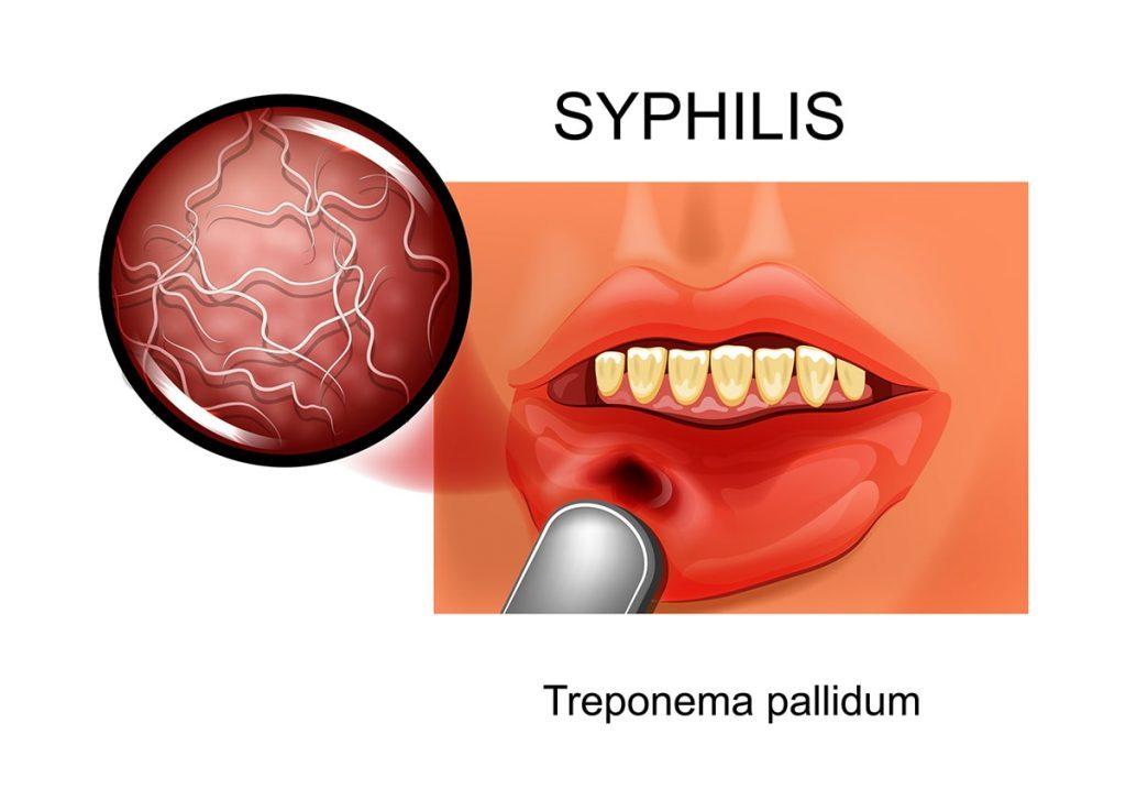 STI Syphilis-min