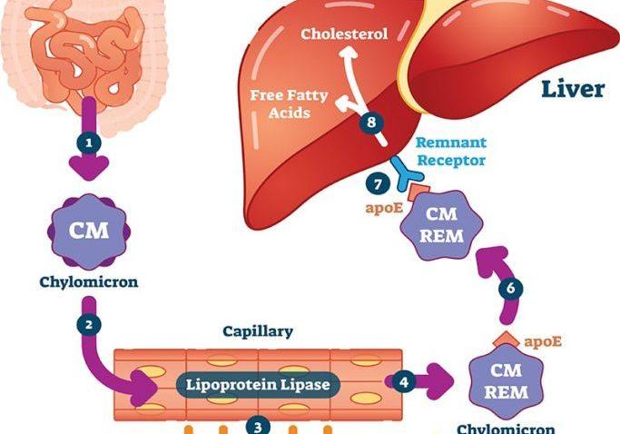 cholesterol.lipid.profile-min